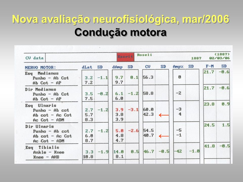 Nova avaliação neurofisiológica, mar/2006 Condução motora
