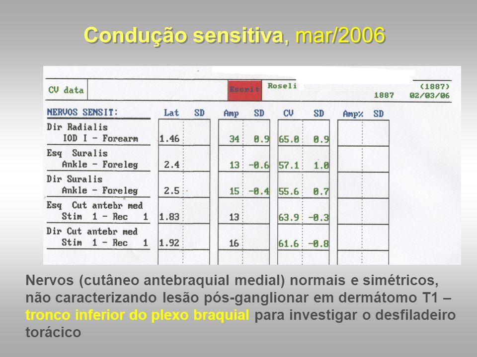 Condução sensitiva, mar/2006