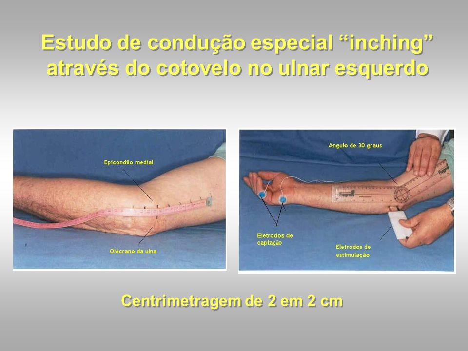 Estudo de condução especial inching através do cotovelo no ulnar esquerdo