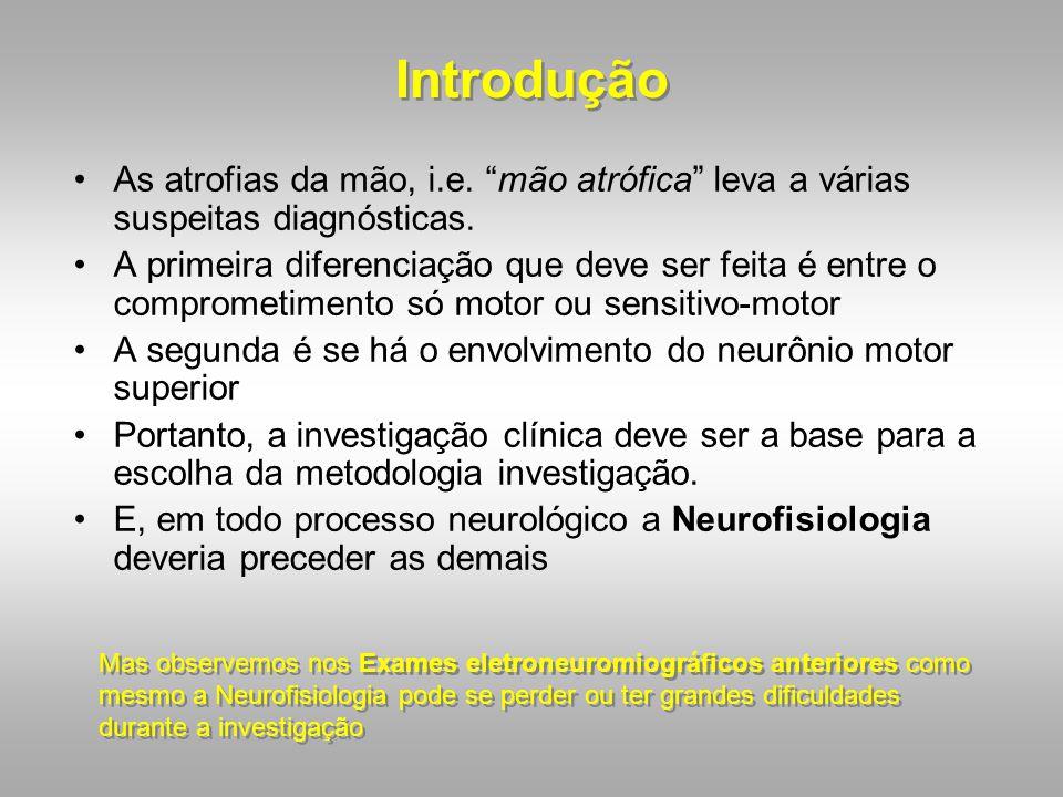 Introdução As atrofias da mão, i.e. mão atrófica leva a várias suspeitas diagnósticas.