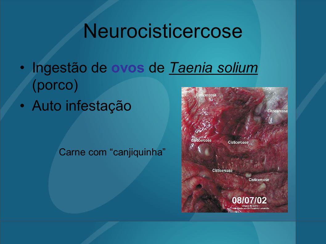 Neurocisticercose Ingestão de ovos de Taenia solium (porco)