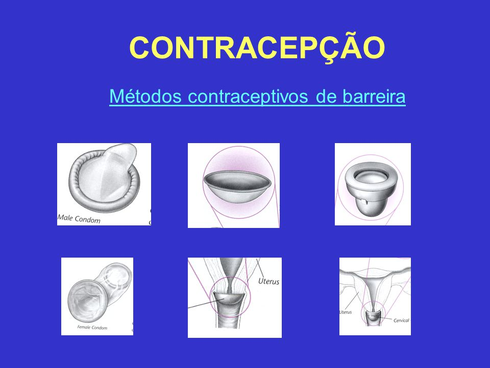 Métodos contraceptivos de barreira