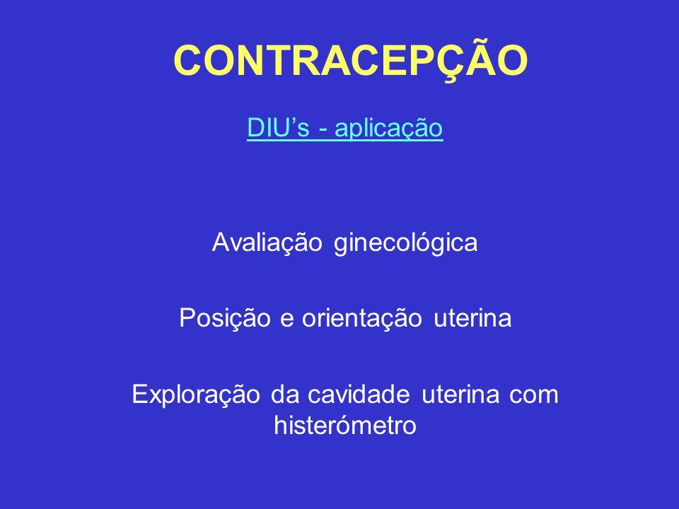 CONTRACEPÇÃO DIU's - aplicação Avaliação ginecológica