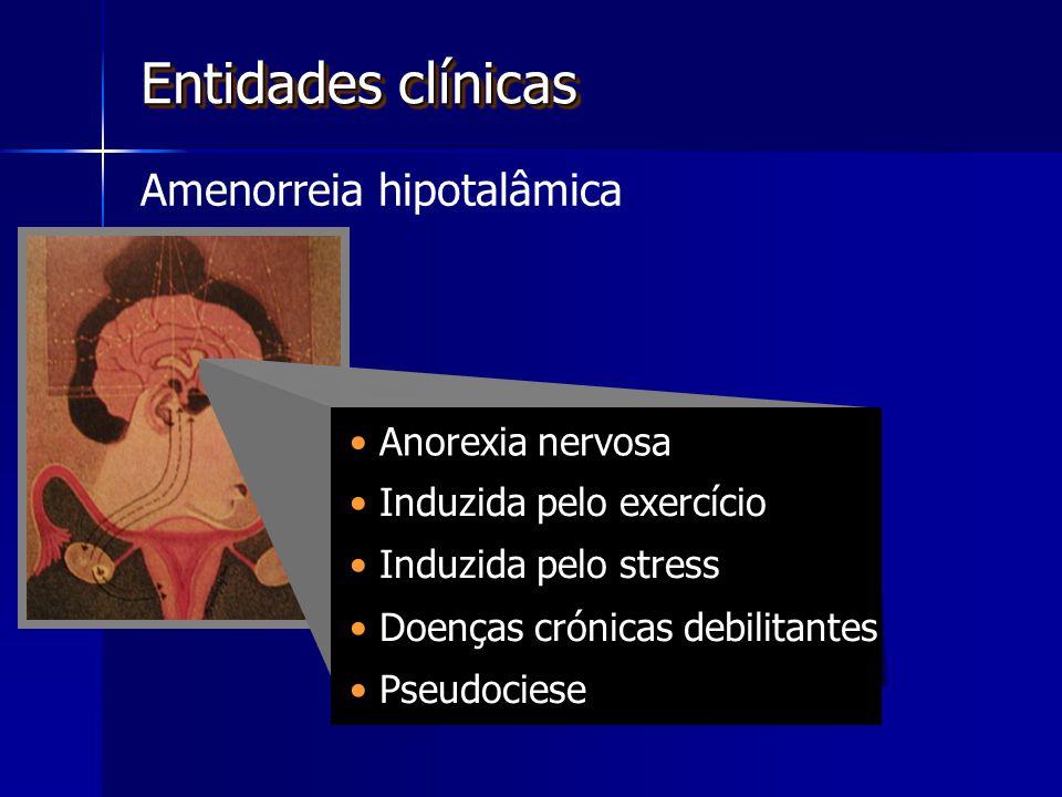 Entidades clínicas Amenorreia hipotalâmica Anorexia nervosa
