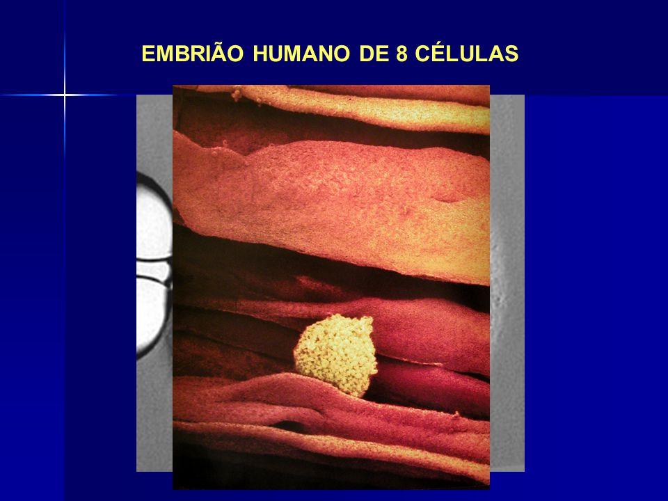 EMBRIÃO HUMANO DE 8 CÉLULAS