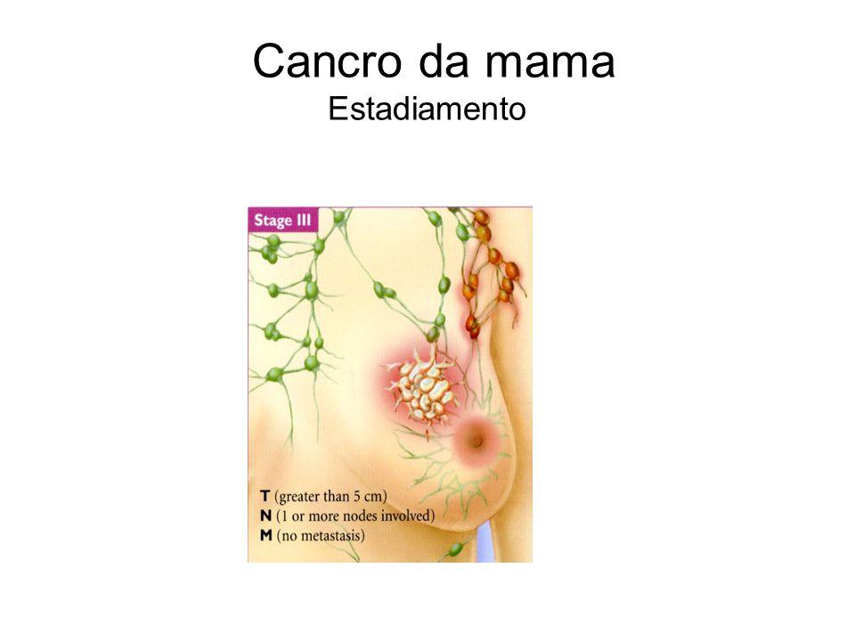 Cancro da mama Estadiamento