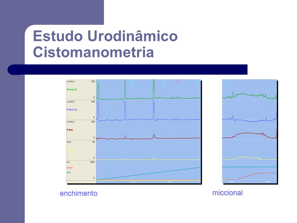 Estudo Urodinâmico Cistomanometria