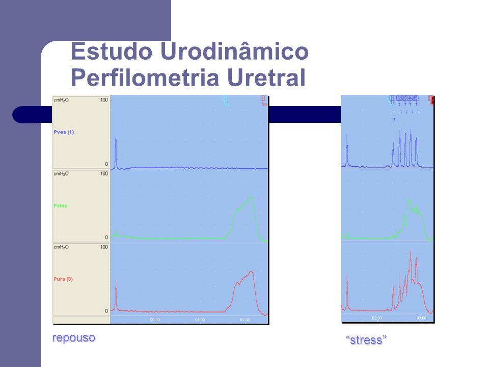 Estudo Urodinâmico Perfilometria Uretral