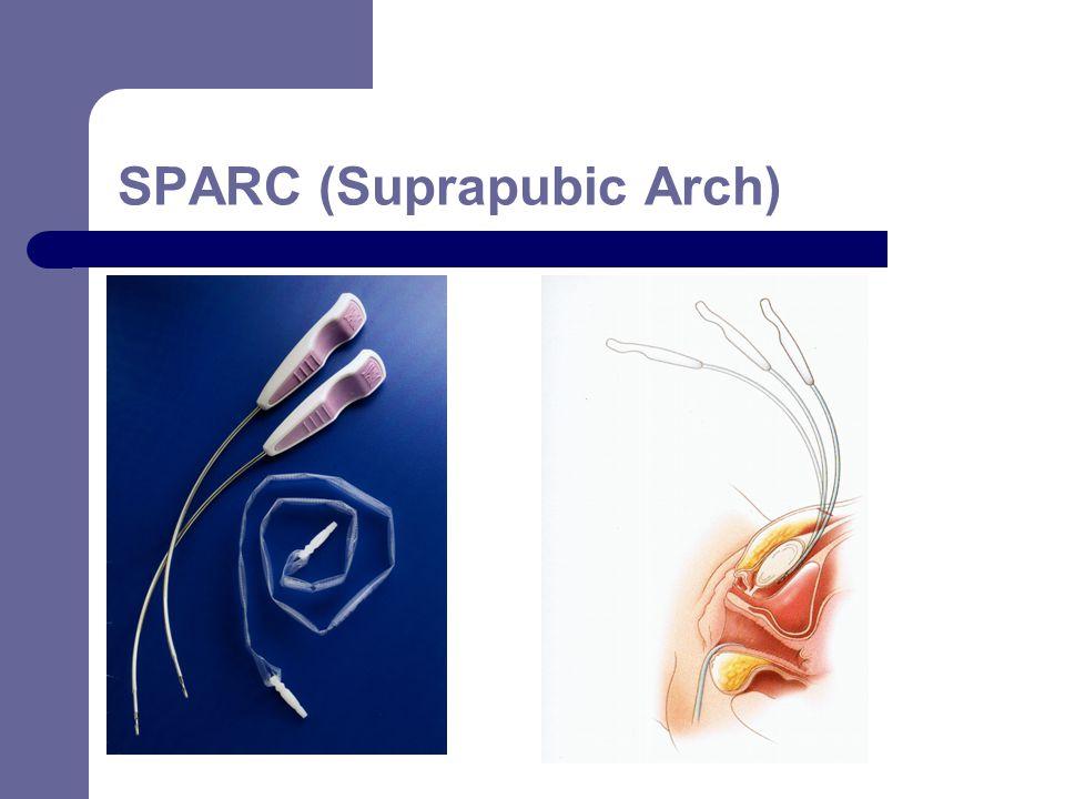 SPARC (Suprapubic Arch)