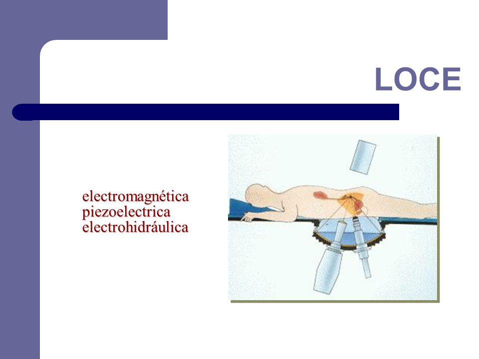 LOCE electromagnética piezoelectrica electrohidráulica 32