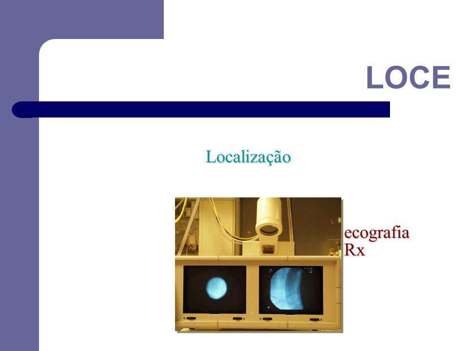LOCE Localização ecografia Rx 36