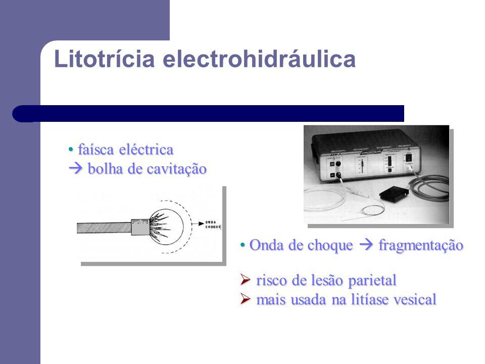 Litotrícia electrohidráulica