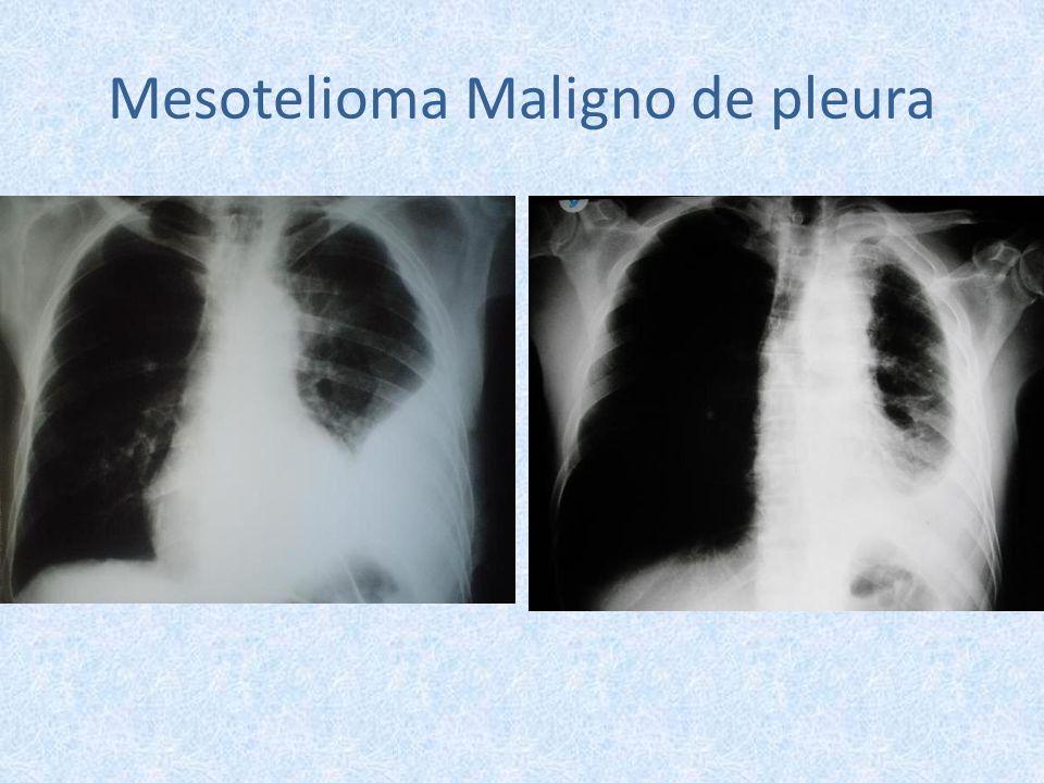 Mesotelioma Maligno de pleura