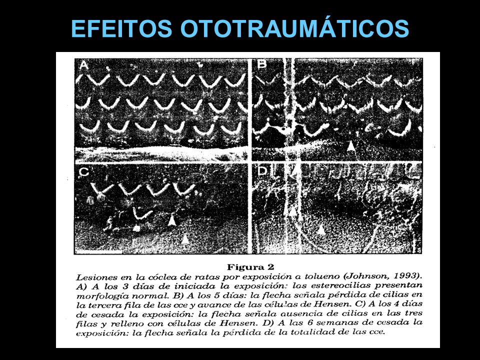 EFEITOS OTOTRAUMÁTICOS