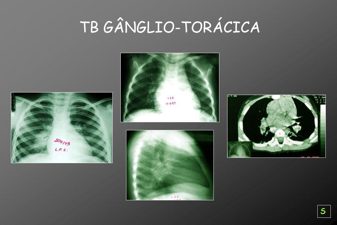 TB GÂNGLIO-TORÁCICA S