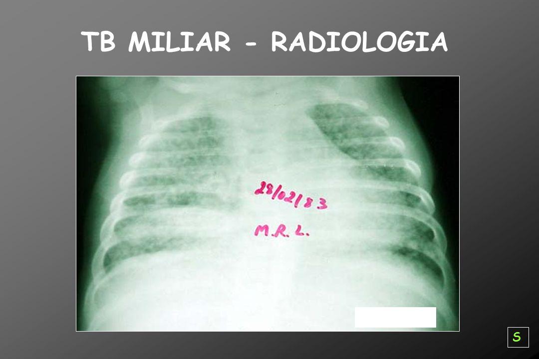 TB MILIAR - RADIOLOGIA S