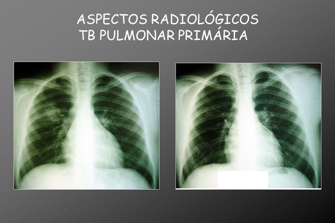 ASPECTOS RADIOLÓGICOS TB PULMONAR PRIMÁRIA