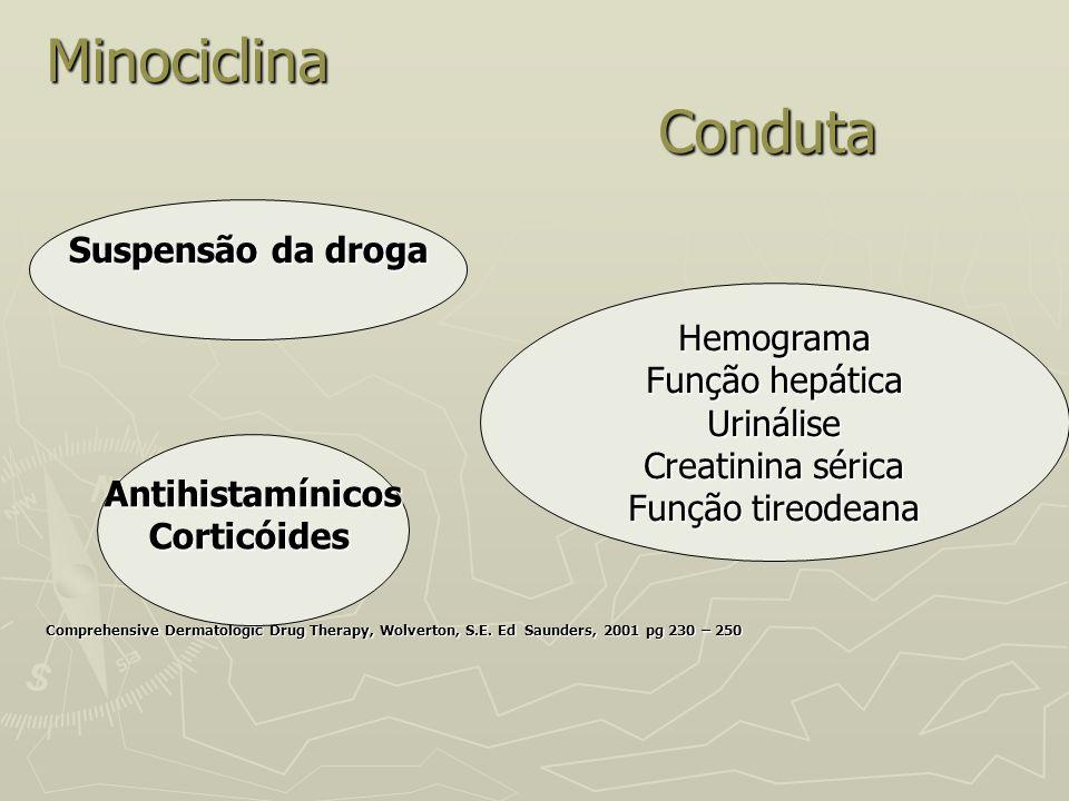 Minociclina Conduta Suspensão da droga Hemograma Função hepática