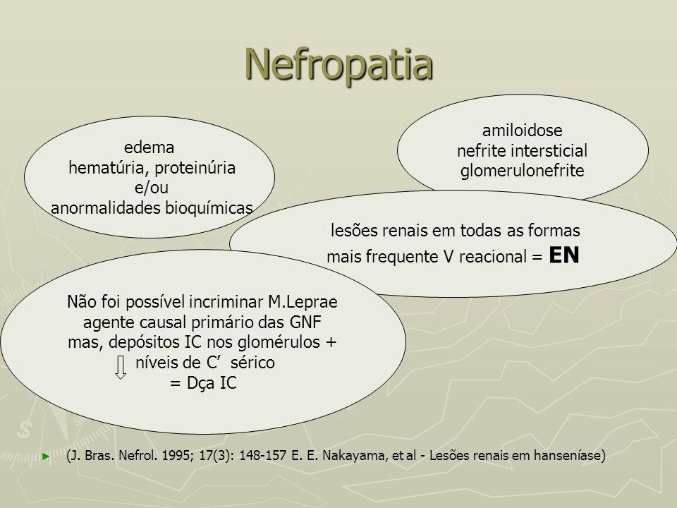 Nefropatia amiloidose nefrite intersticial edema glomerulonefrite
