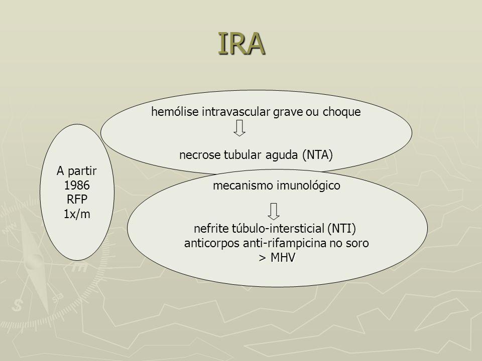 IRA hemólise intravascular grave ou choque necrose tubular aguda (NTA)