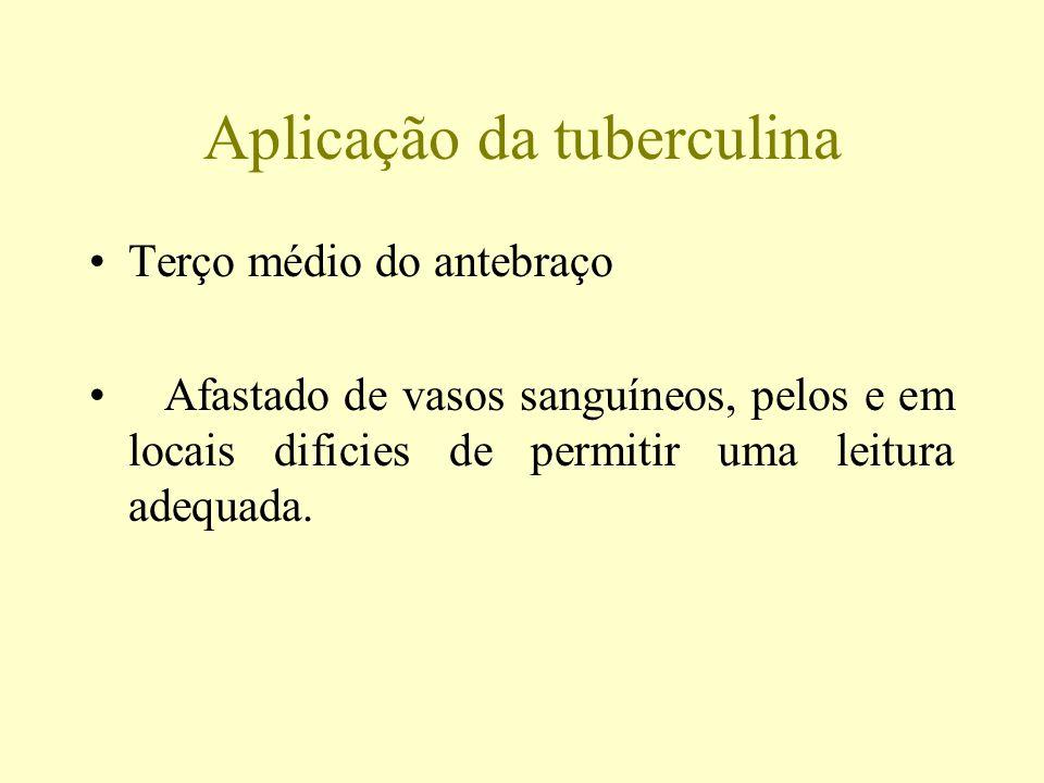 Aplicação da tuberculina