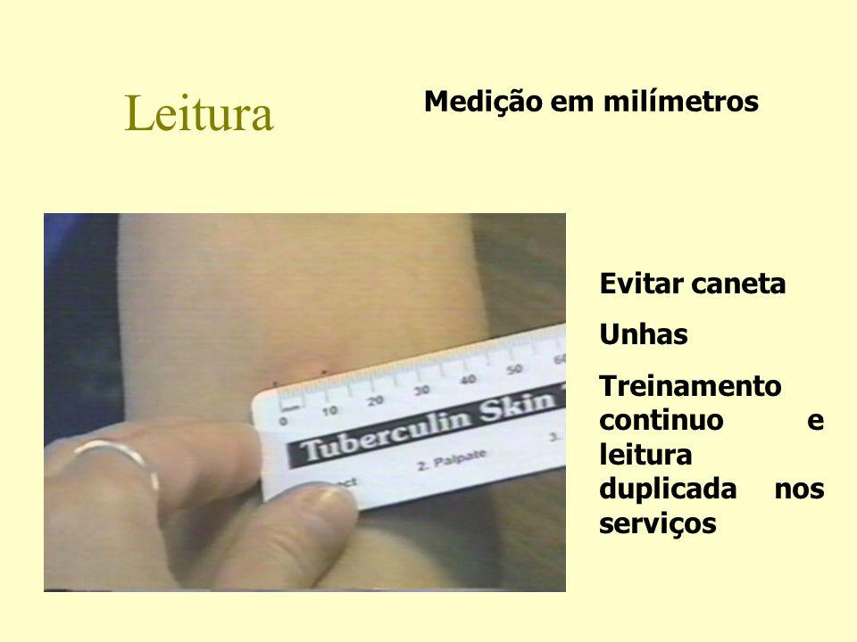 Leitura Medição em milímetros Evitar caneta Unhas