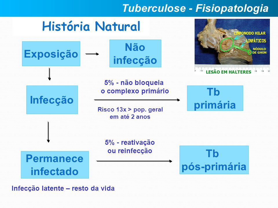 História Natural Tuberculose - Fisiopatologia Não Exposição infecção