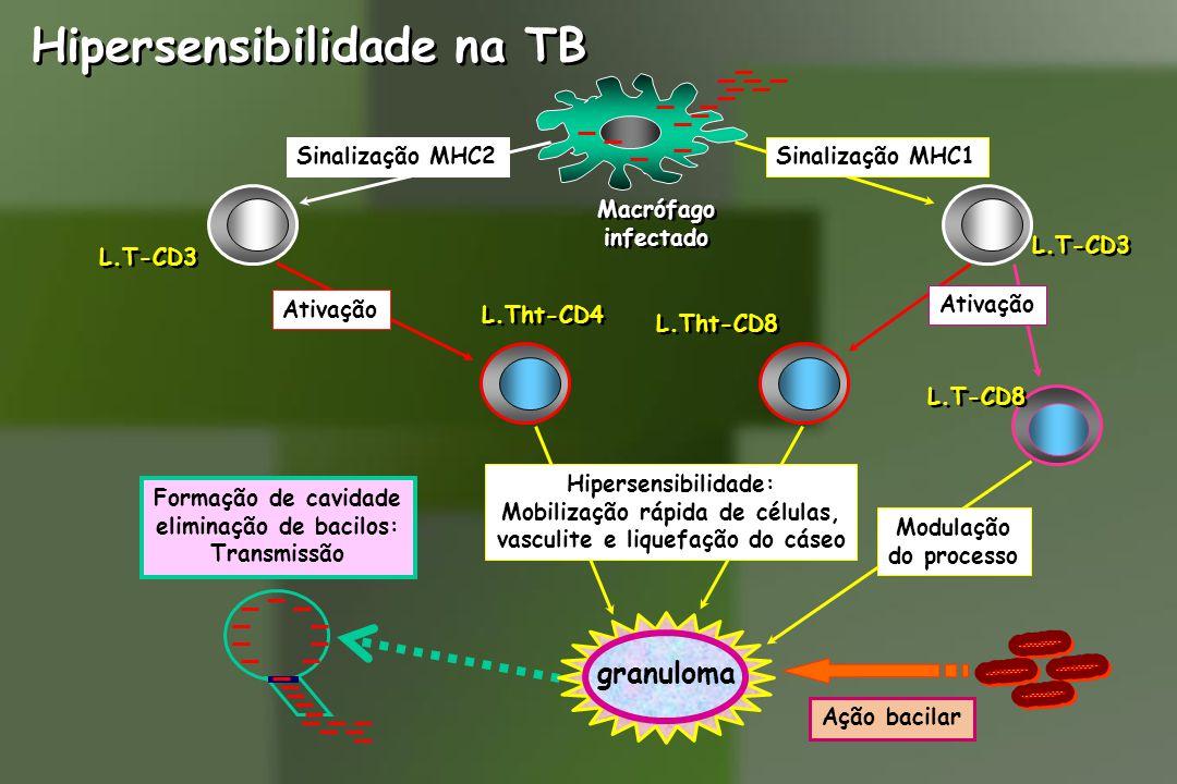 Hipersensibilidade na TB