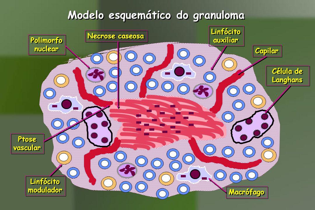 Modelo esquemático do granuloma
