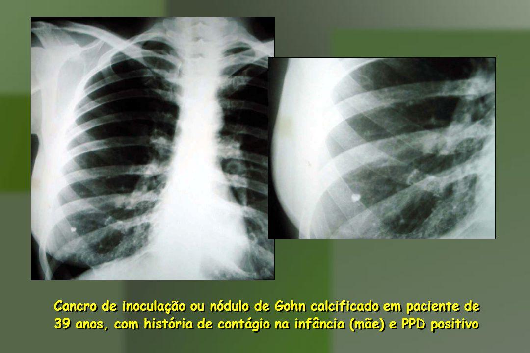 Cancro de inoculação ou nódulo de Gohn calcificado em paciente de