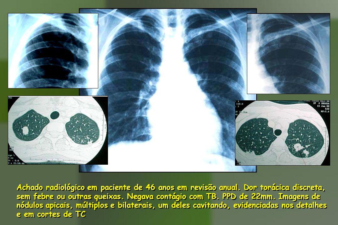 Achado radiológico em paciente de 46 anos em revisão anual