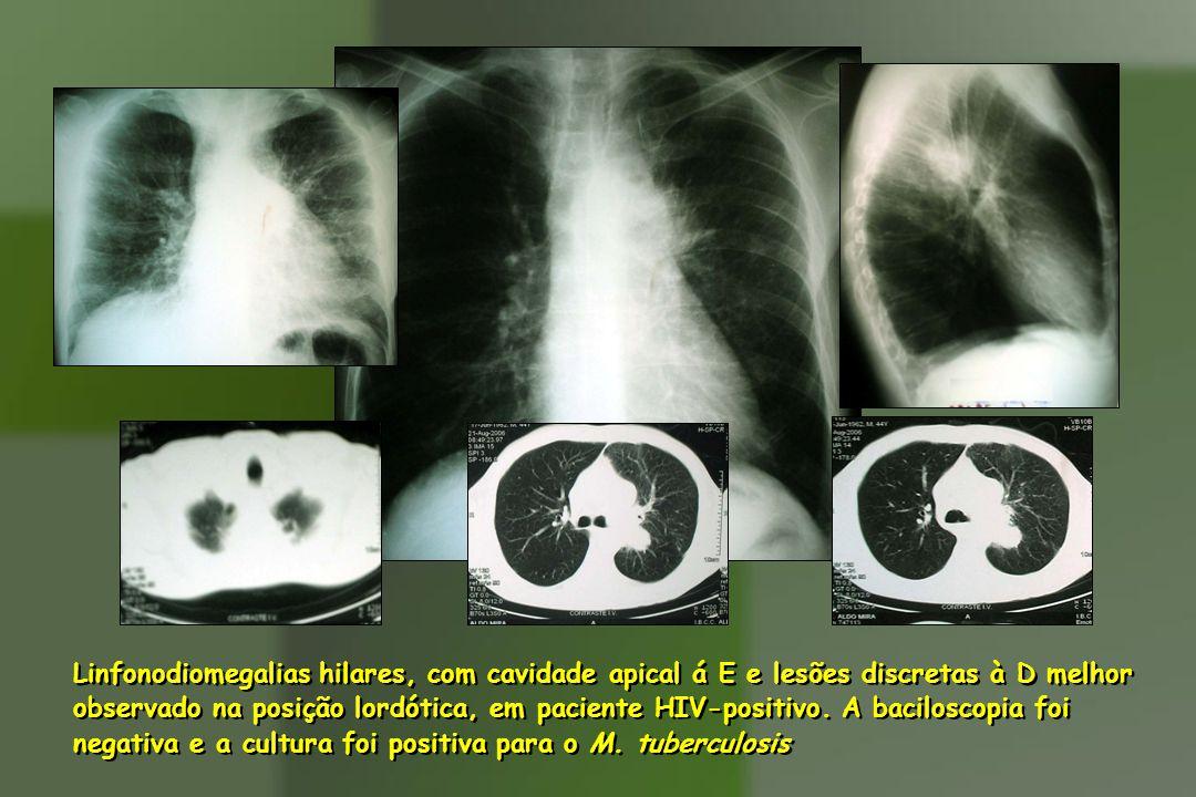 Linfonodiomegalias hilares, com cavidade apical á E e lesões discretas à D melhor