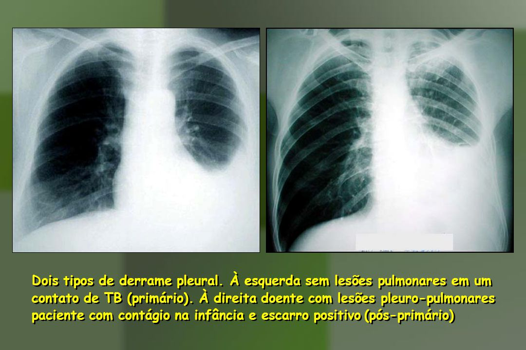 Dois tipos de derrame pleural. À esquerda sem lesões pulmonares em um