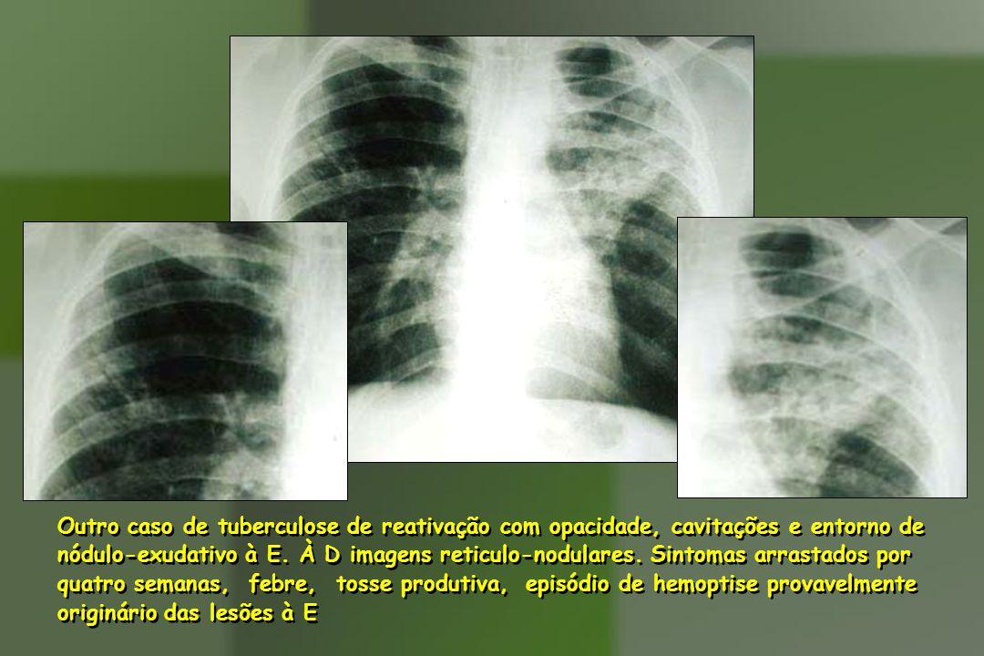 Outro caso de tuberculose de reativação com opacidade, cavitações e entorno de