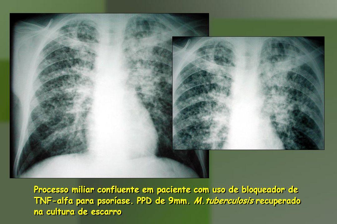 Processo miliar confluente em paciente com uso de bloqueador de