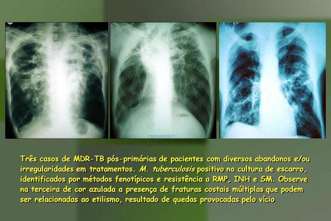 Três casos de MDR-TB pós-primárias de pacientes com diversos abandonos e/ou