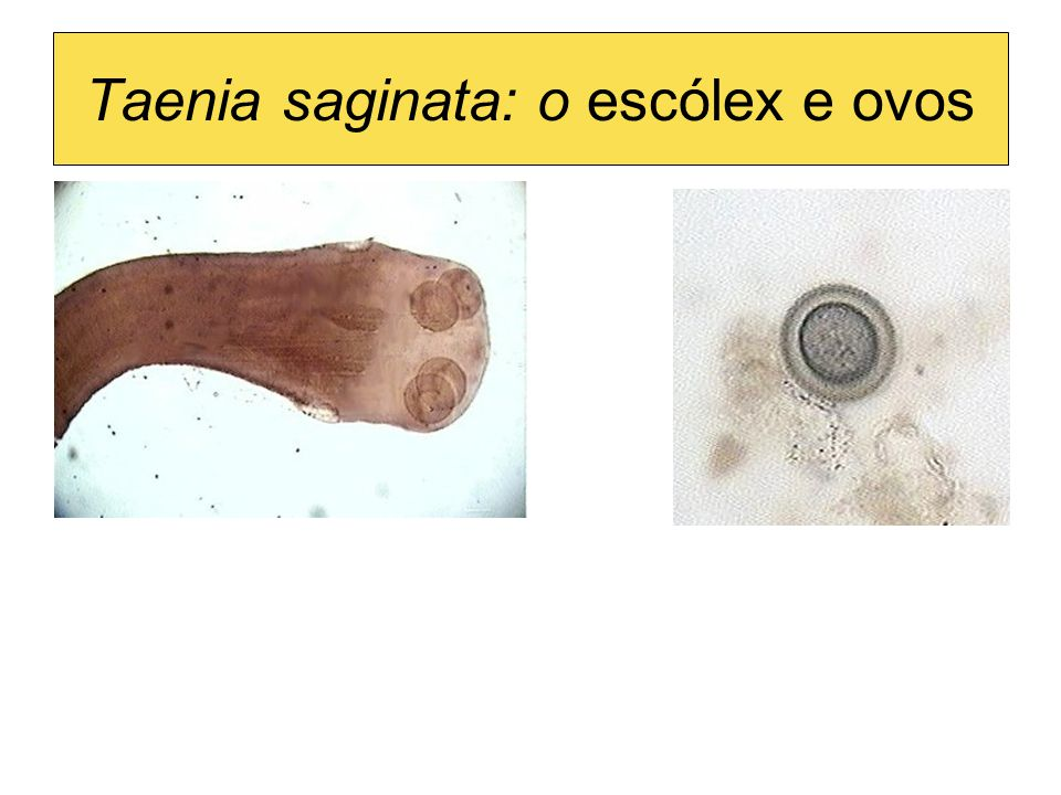 Taenia saginata: o escólex e ovos