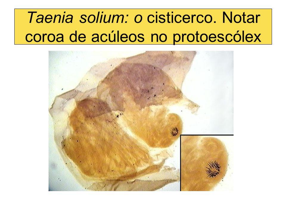 Taenia solium: o cisticerco. Notar coroa de acúleos no protoescólex
