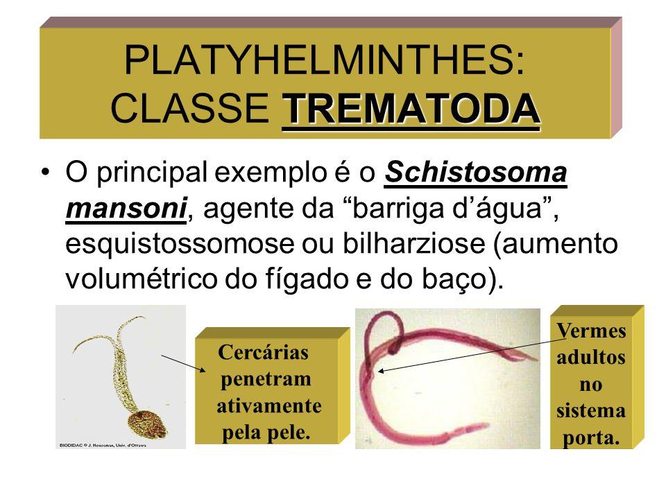 PLATYHELMINTHES: CLASSE TREMATODA