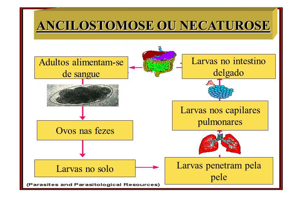 ANCILOSTOMOSE OU NECATUROSE