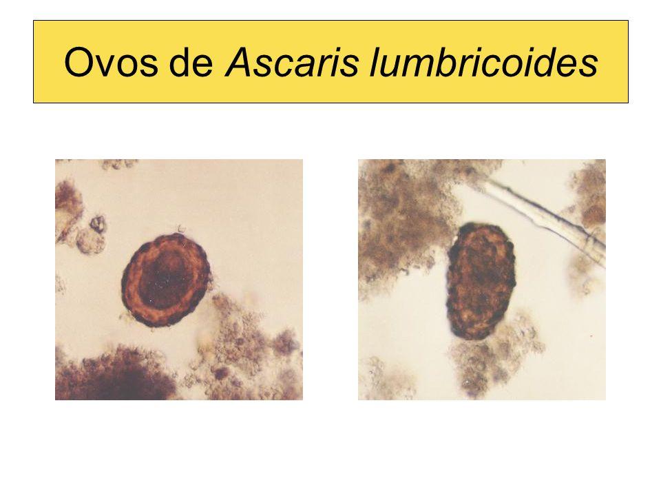 Ovos de Ascaris lumbricoides
