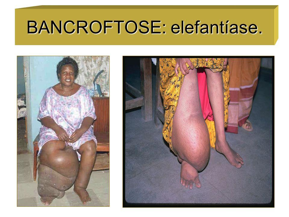 BANCROFTOSE: elefantíase.