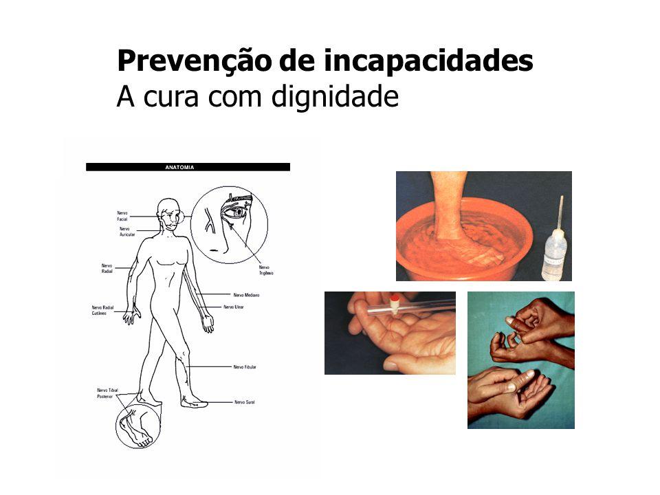 Prevenção de incapacidades