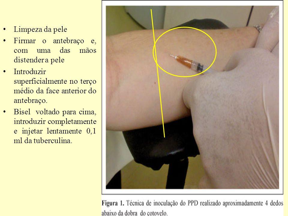 Limpeza da pele Firmar o antebraço e, com uma das mãos distender a pele. Introduzir superficialmente no terço médio da face anterior do antebraço.