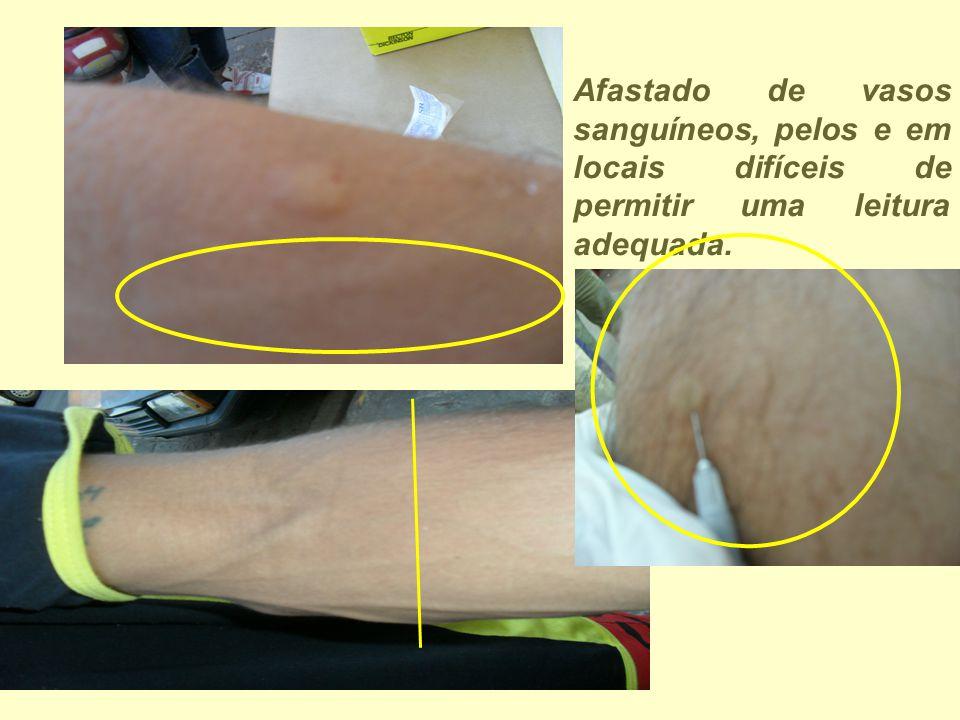 Afastado de vasos sanguíneos, pelos e em locais difíceis de permitir uma leitura adequada.