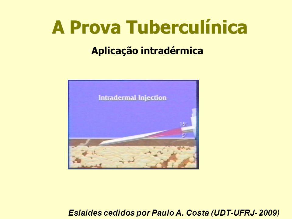 Eslaides cedidos por Paulo A. Costa (UDT-UFRJ- 2009)