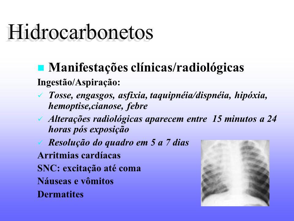 Hidrocarbonetos Hidrocarbonetos Manifestações clínicas/radiológicas