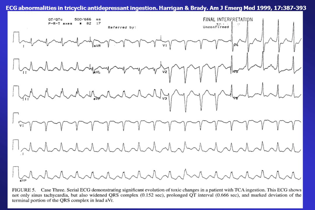 ECG abnormalities in tricyclic antidepressant ingestion