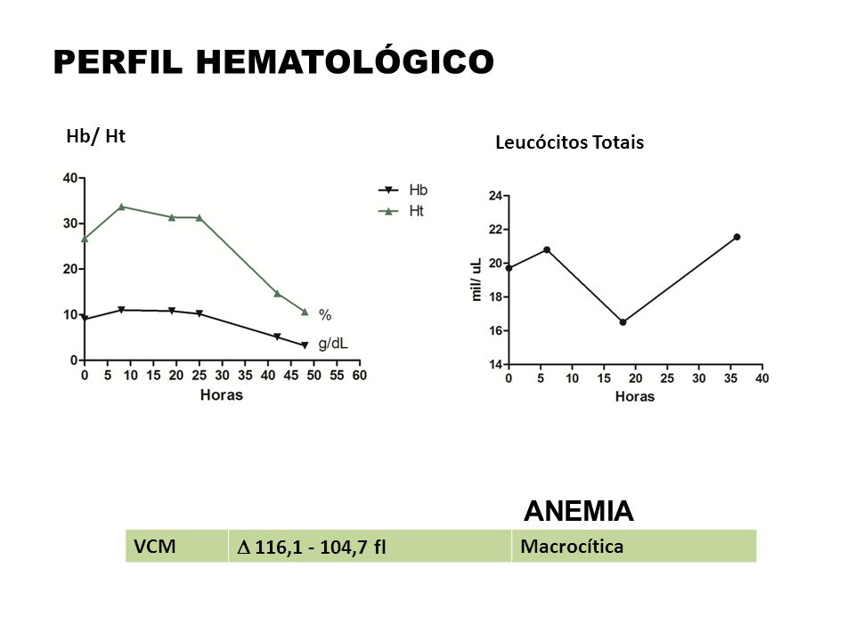 PERFIL HEMATOLÓGICO ANEMIA Hb/ Ht Leucócitos Totais VCM