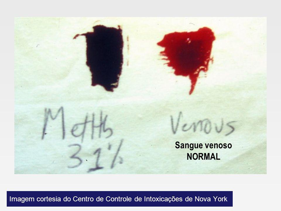 Imagem cortesia do Centro de Controle de Intoxicações de Nova York
